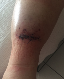 Simple laceration showing mild oedema